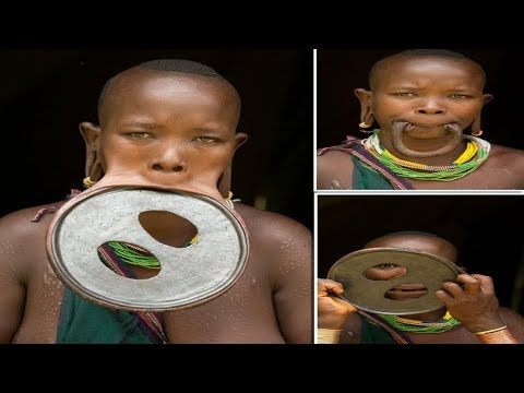 Largest Lip Plate: Woman with the World's Biggest Lip Disc - measuring ...