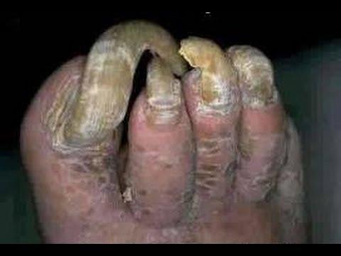 El tratamiento del hongo de las uñas durante la lactación