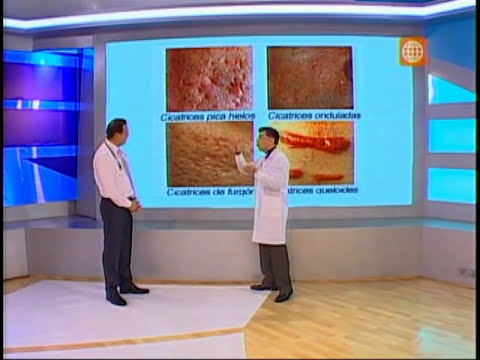 Acné: Tratamiento de cicatrices de acné en Dr. TV - entrevista al Dr. Aparcana