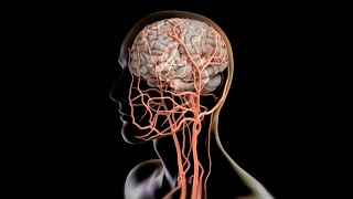 How to pull a clot from the brain | Science News