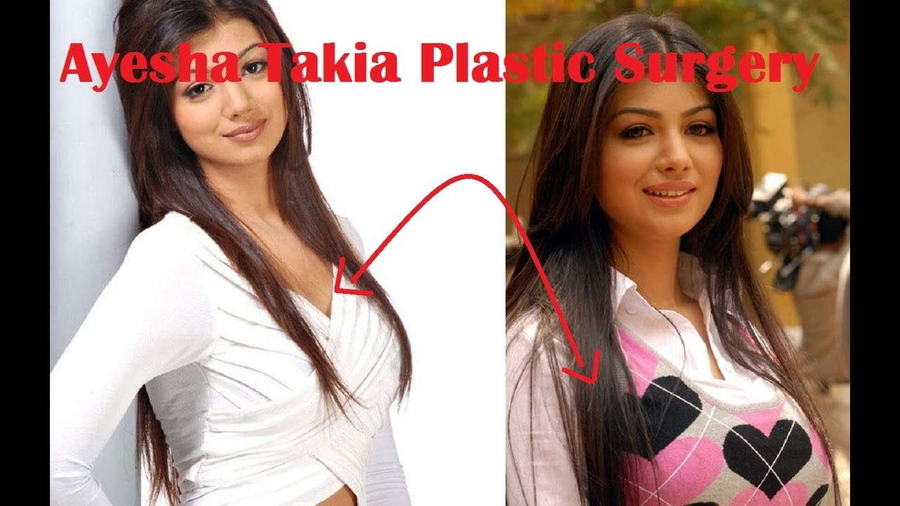 ayesha takia plastic surgery before and after   youtube