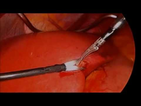 Gastric banding surgery for fatty liver disease
