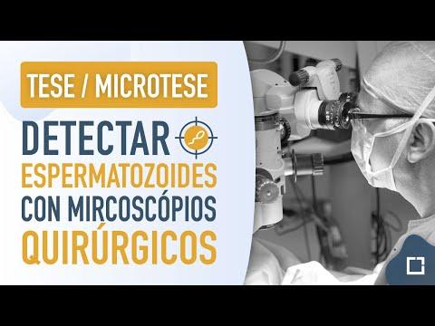 Tese y microtese. Técnicas de detección de espermatozoides en azoospermia.