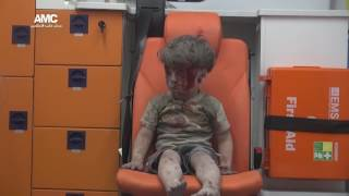 Blood and soot: Haunting image of Syrian boy rescued from Aleppo rubble