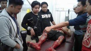 Download video BEGAL MAKASSAR BERSENJATA PARANG DITEMBAK TIGA KALI