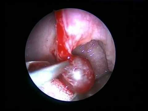 CYST. - SOFT PALATE , A RARE CASE..