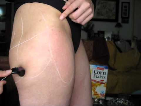 Dermaroller - stretch marks on thighs