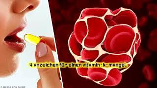 4 Anzeichen für einen Vitamin-K-Mangel