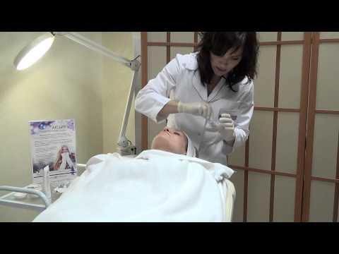 Ретиноловый (желтый) пилинг в Клинике ЭДИТ (edit.ua)