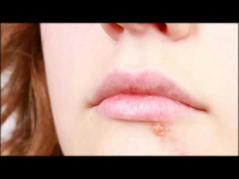Cremes gegen Herpes: Welche Mittel helfen wirklich?