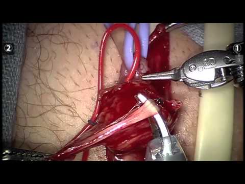 Robot Microsurgical Varicocele Repair with Dr. McCullough at Albany Medical Center