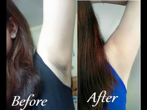 How to get Smooth Fairer Underarms Instantly