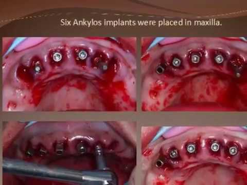 Dental Implants Lower Jaw Ankylos Syncone Overdenture