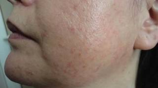 Dermoscopy of common facial inflammatory skin diseases by A. Lallas