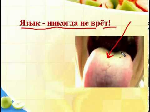 Белый налет во рту: норма или