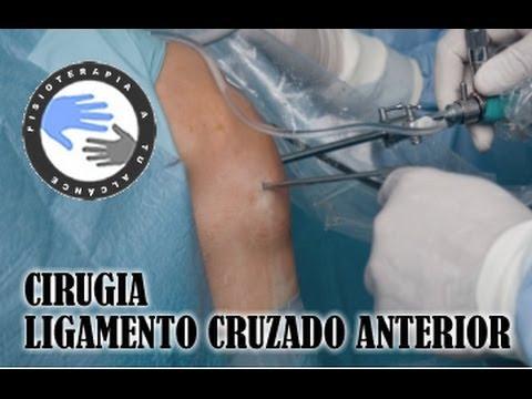 Operacion ligamento cruzado anterior, cirugia por artroscopia / Fisioterapia a tu alcance