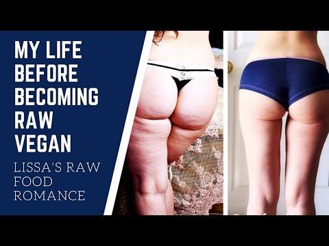 MY LIFE BEFORE RAW VEGAN || WEIGHT LOSS HEALTH JOURNEY