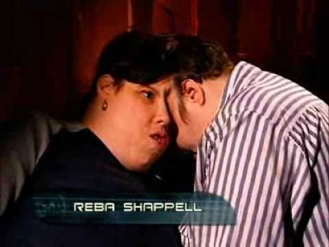 Lori and Reba Schappell - Conjoined Twins