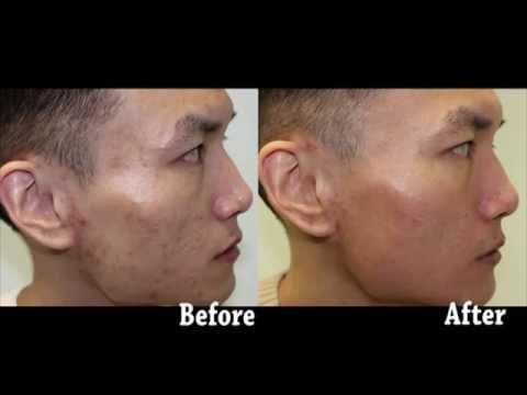 Asian Male Acne Scar Resurfacing