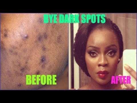Dark Spots Be Gone | Treating ACNE scars + GIVEAWAY