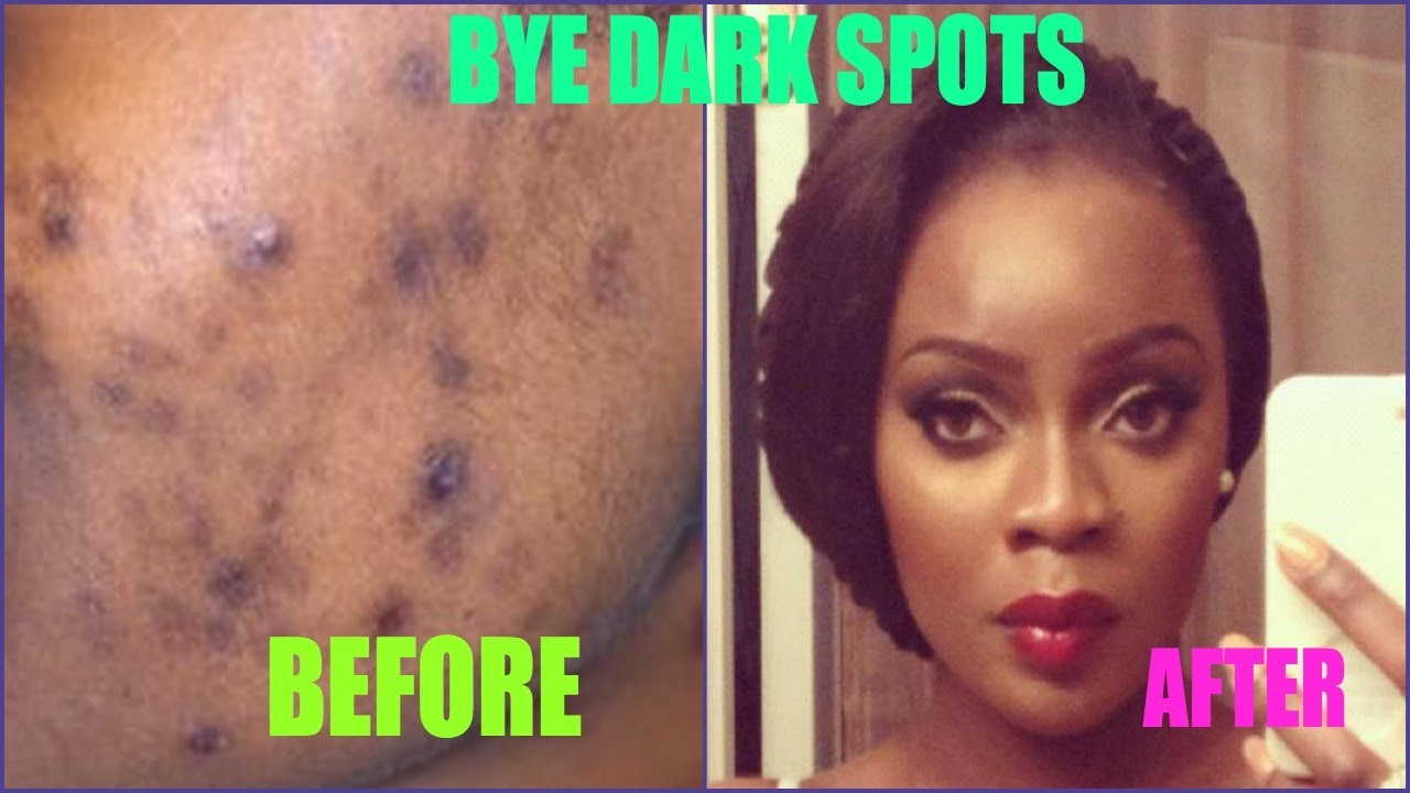 dark spots be gone treating acne scars giveaway youtube