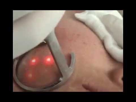 Laser skin resurfacing for acne scars removal treatment with fractional CO2 laser