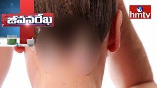 Dr Ramakrishna Reddy | Homeopathy For Psoriasis | Darasani Homeo Clinic | Jeevana Rekha | hmtv