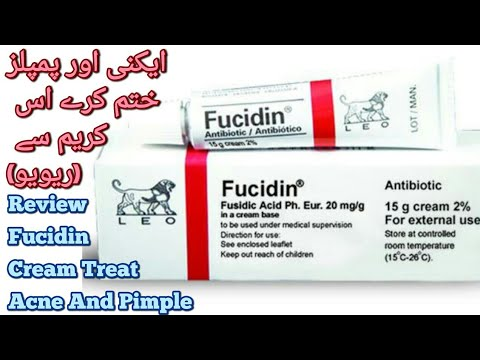 Fucidin Cream Review||Fucidin Cream For Acne Scars ||how to clear forehead small bumps in urdu/hindi