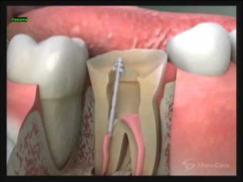 What Is A Dental Post California Dental Group Youtube