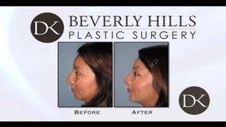 Rhinoplasty recovery in 45 days
