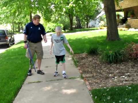 Truman walks - Truman walks as fast as he can with his prosthetic leg 04/23/10