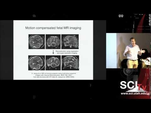 Machine learning meets medical imaging: From signals to clinically useful information