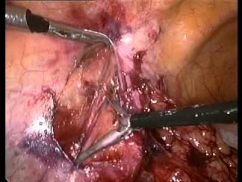 Laparoscopic Varicocelectomy Varicocele Ligation By Dr M ...