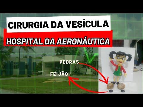 COLECISTECTOMIA - Pós operatório da vesícula biliar.