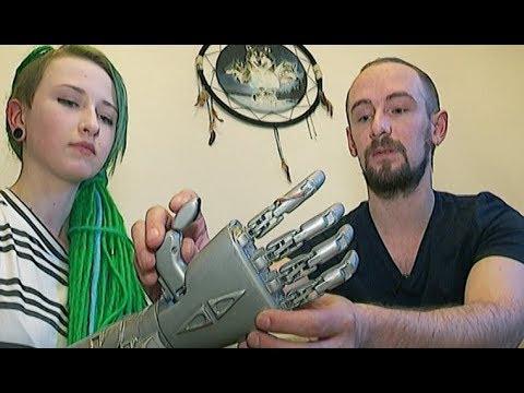 Бюджетный бионический протез руки