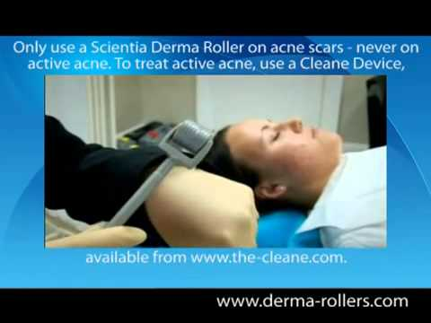 Derma Roller Review for Removing Acne Scars And Ice Pick Scars