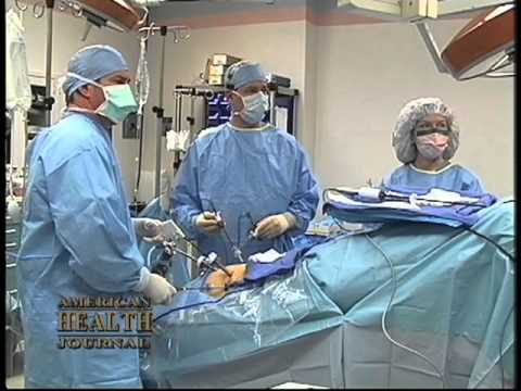 What Is A Radical Prostatectomy Video