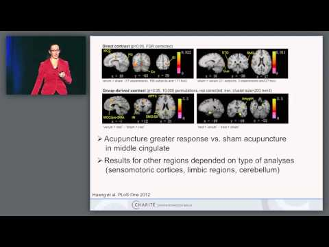 Neuroimaging and Stimulation Studies