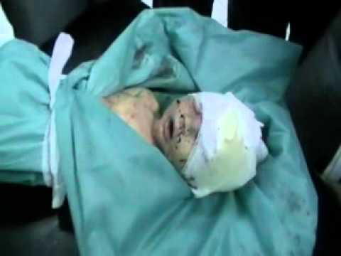 حلب:جنين قتل قبل أن يولد برصاص قناصة+18