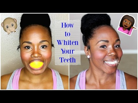 How to Whiten Teeth At Home FAST    BEST Whitening Kit & Home Remedies