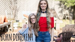 My Identical Twin With Dwarfism | BORN DIFFERENT