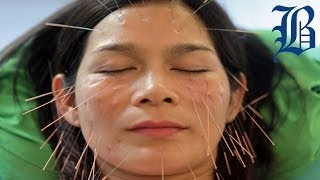 Rejuvenating the Face, One Needle at a Time