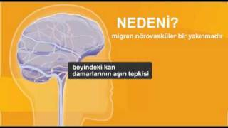 Migren nedir? migren belirtileri - migren hakkında bilgi