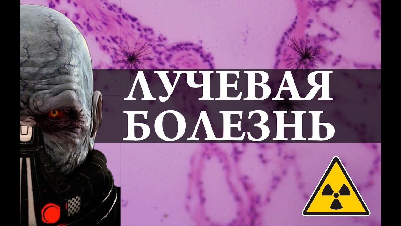 Лучевая болезнь. Радиация. Химия – просто