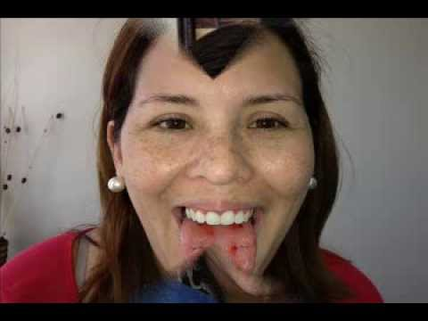 DOCTOR MALLA VIDEO OFICIAL
