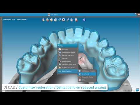 Turn on the volume to hear the voice narration.] This tutorial features the step-by-step process for designing an Implant Bridge with Gingiva (also referred to as prettau bridge) with DWOS...