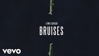 Download Lagu Lewis Capaldi - Bruises (Audio) Gratis STAFABAND