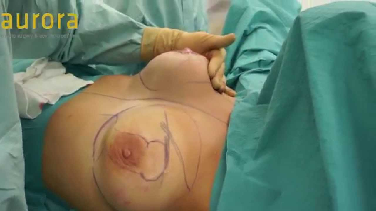 Breast up lift and augmentation