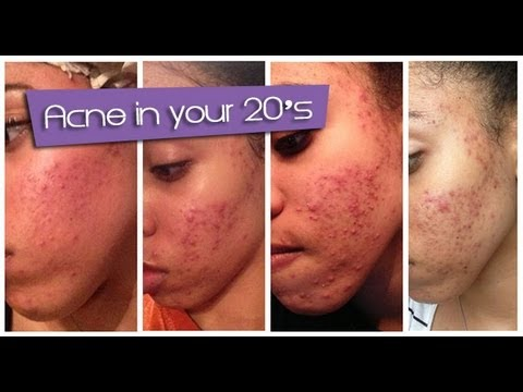 Acne in your 20s