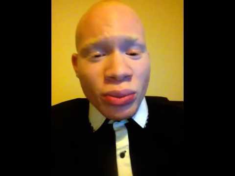 Black Albino Actor Albino Actor Sir Maejor's Big